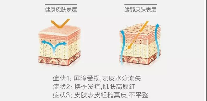 敏感肌表皮层